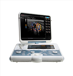 MyLab Gamma Laptop Ultrasound