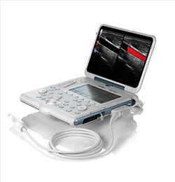 MyLab Alpha Laptop Ultrasound